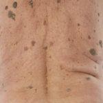 Seborrhoická veruka (seborrhoická keratóza, stařecká bradavice)
