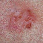 Spinaliom (spinocelulární karcinom)
